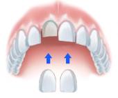 facette dentiste marseille