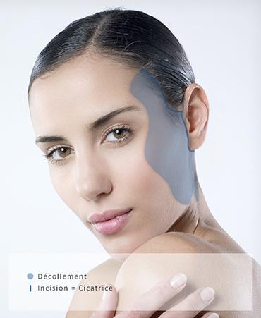 liftingcervico facial marseille