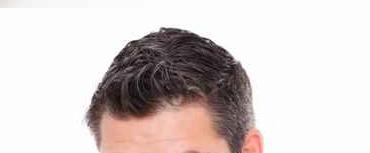 Greffe de cheveux marseille