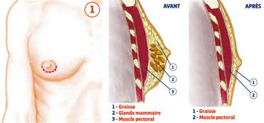 gynécomastie marseille