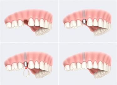 implantologie dentaire marseille