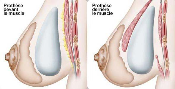 Placement des prothèses mammaires