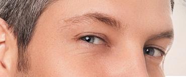 chirurgie esthétique visage marseille