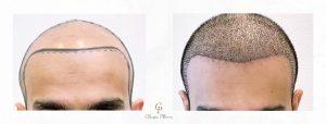 Greffe de cheveux : avant / après